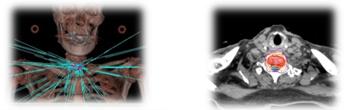 脊椎腫瘍に対する定位放射線治療