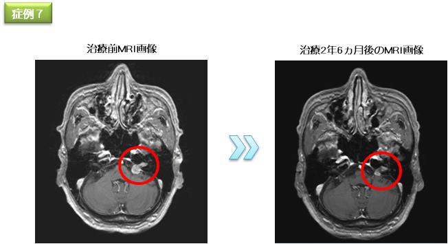 聴神経腫瘍|サイバーナイフセンター